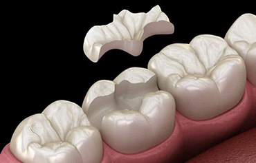 Dental Inlays Crowns