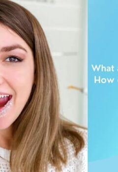 What are invisalign aligners and how does invisalign work?